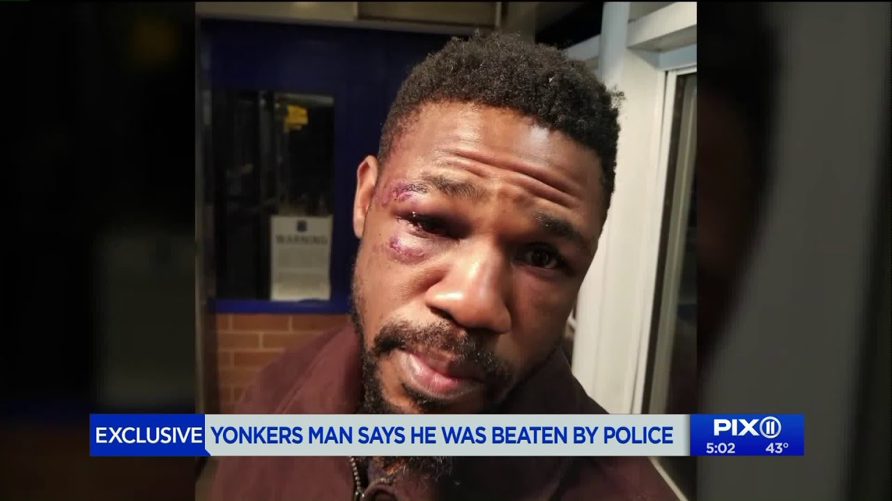 The Veteran who was beaten by Police during false arrest